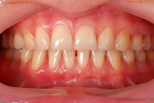 A set of healthy gums.