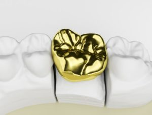 gold dental crown